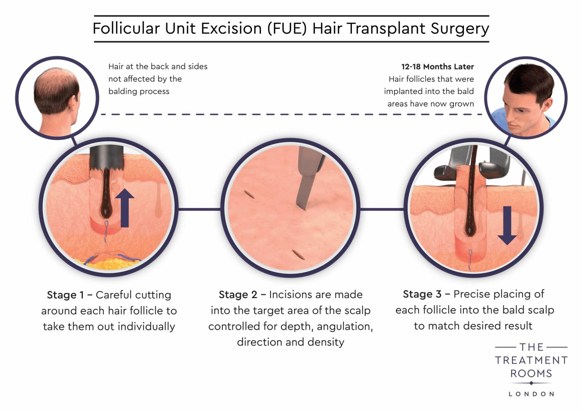 FUE hair transplant surgery diagram