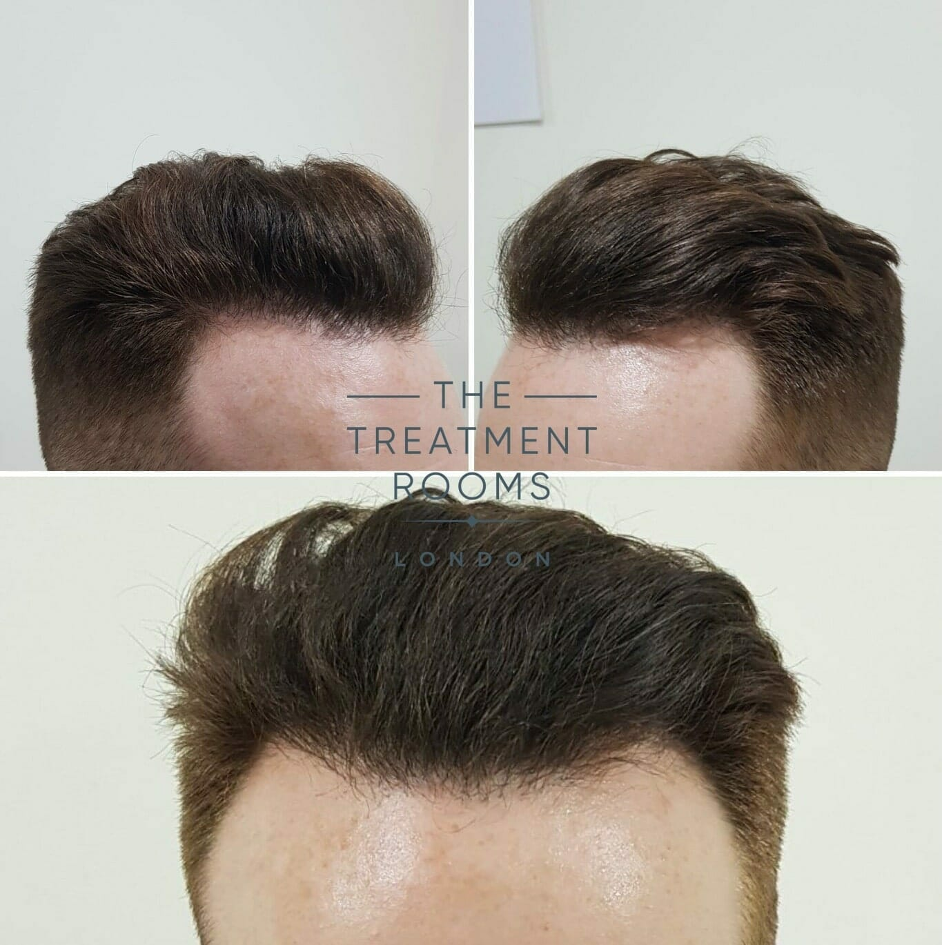 After-FUE-hair-transplant-front-and-temporal-hairline