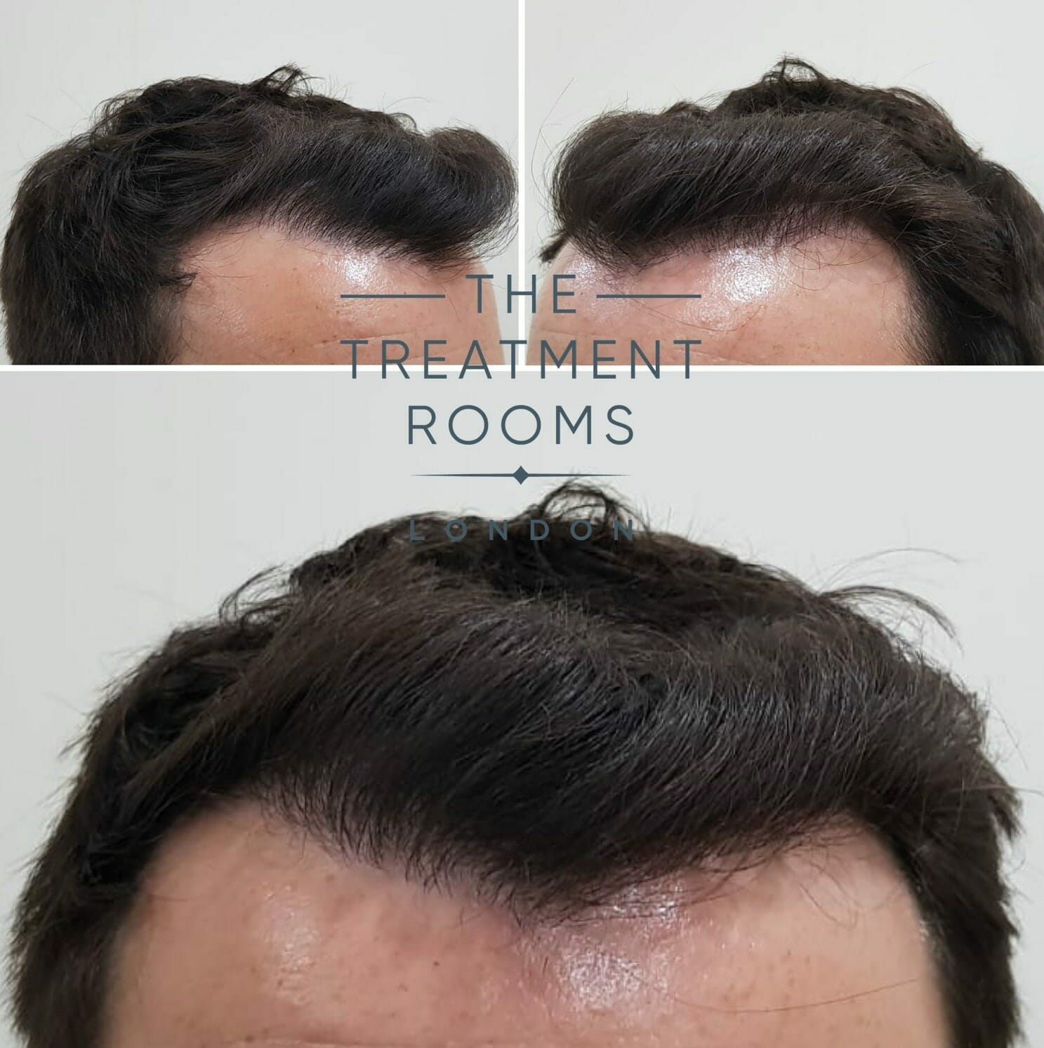 After-FUE-hair-transplant-in-London