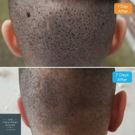 Before-and-After Hair Transplant recovery