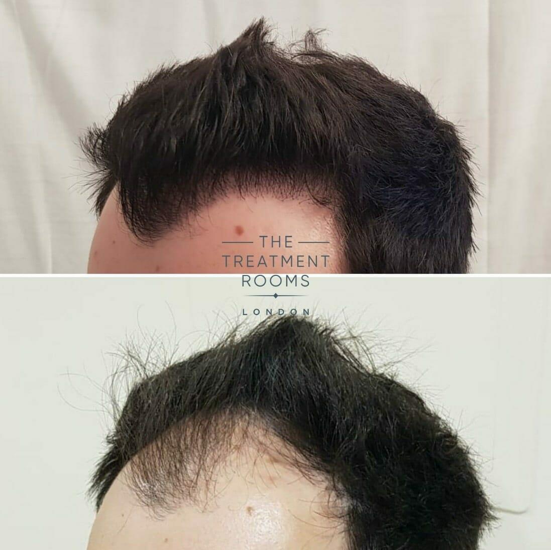Big hairline FUE hair transplant London