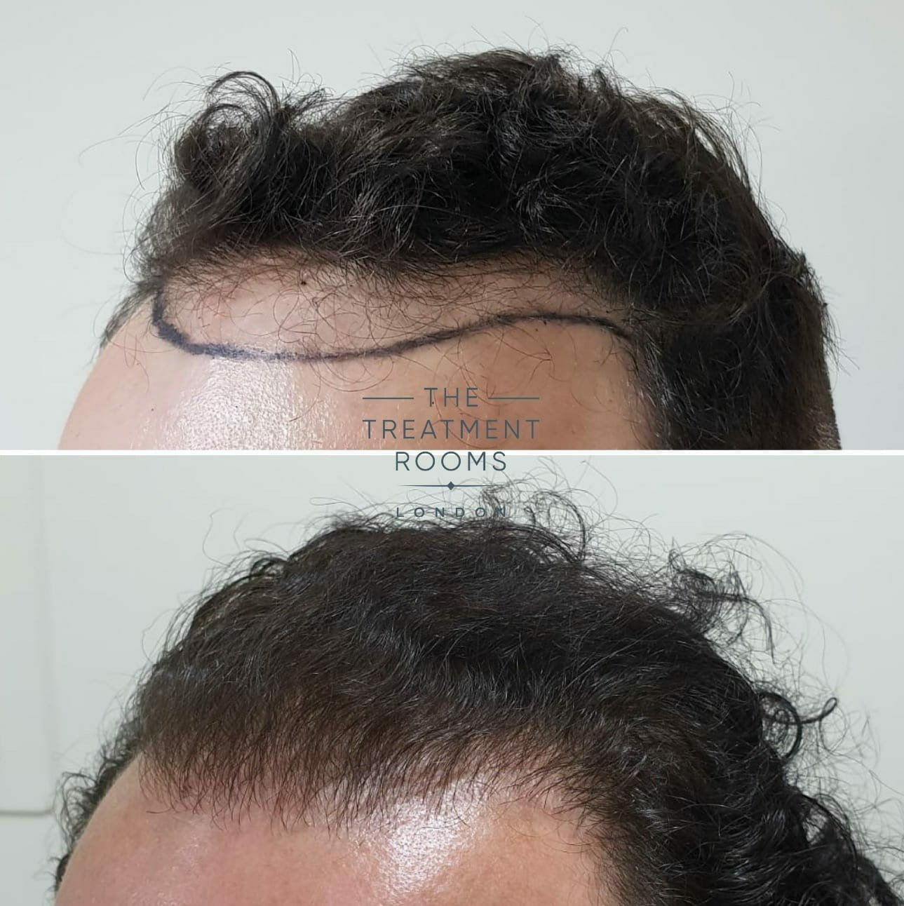 FUE Hair Transplant Left temple Wavy Hair before and after picture