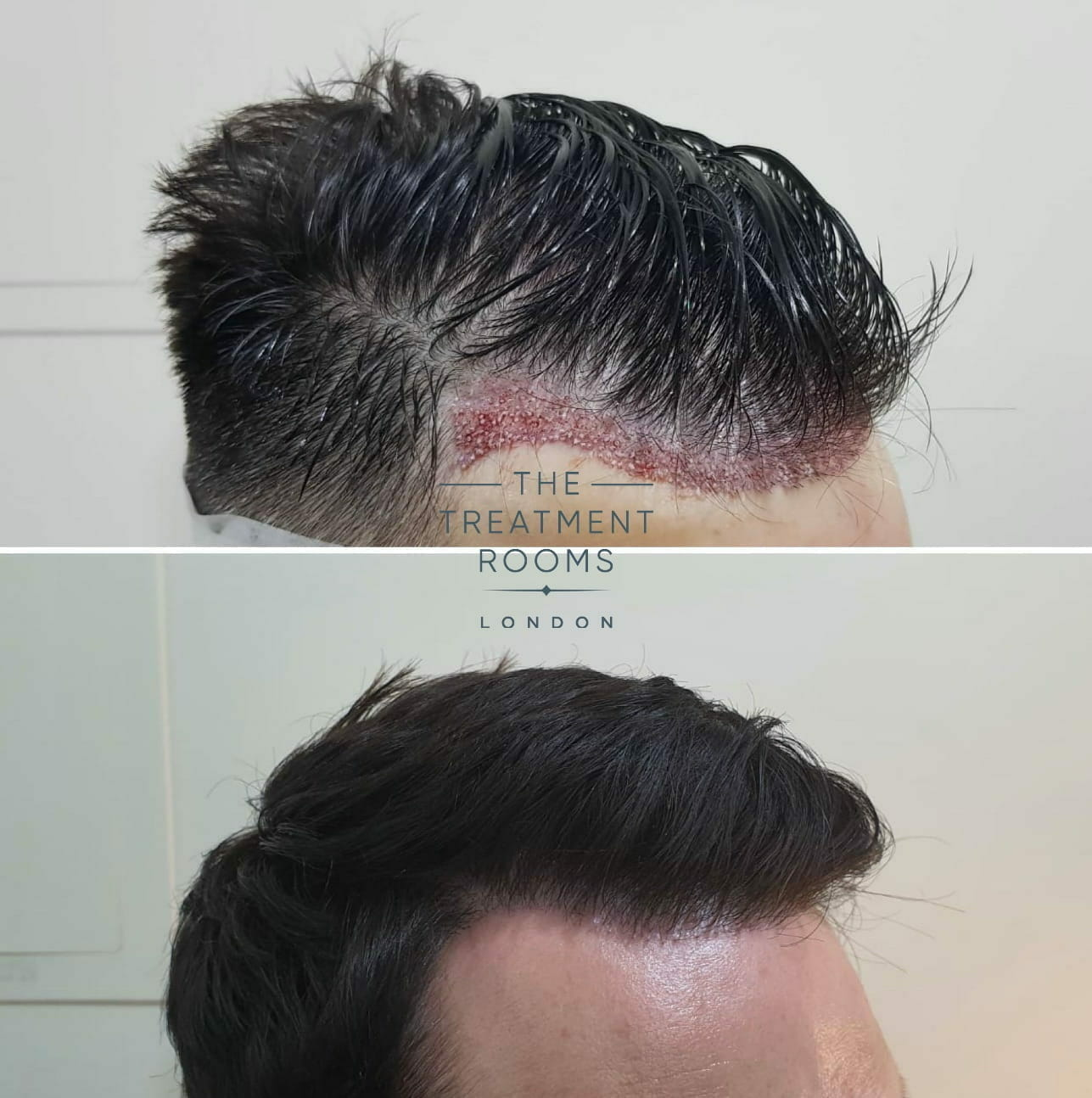 FUE Hair Transplant straight hair Before and After picture