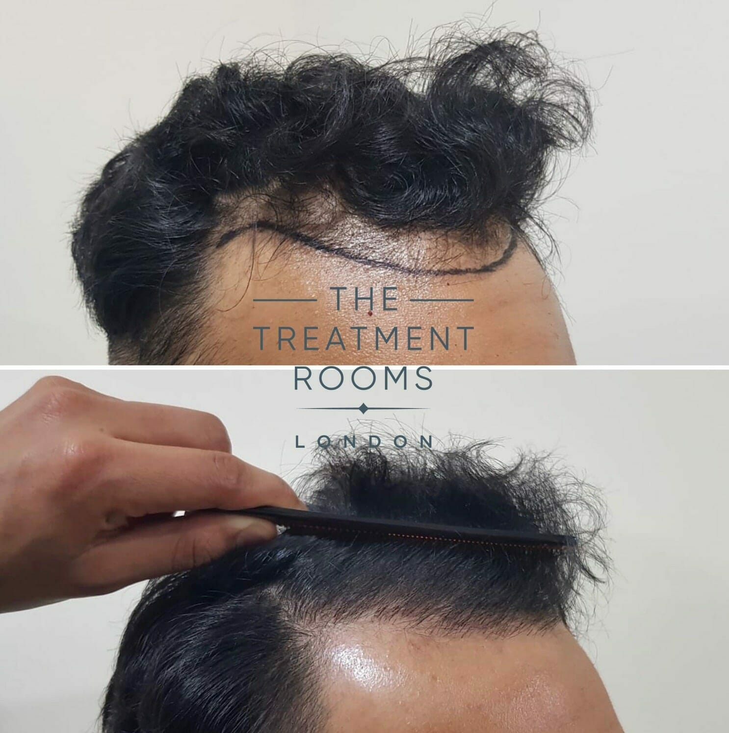 FUE Hair Transplant temple and front