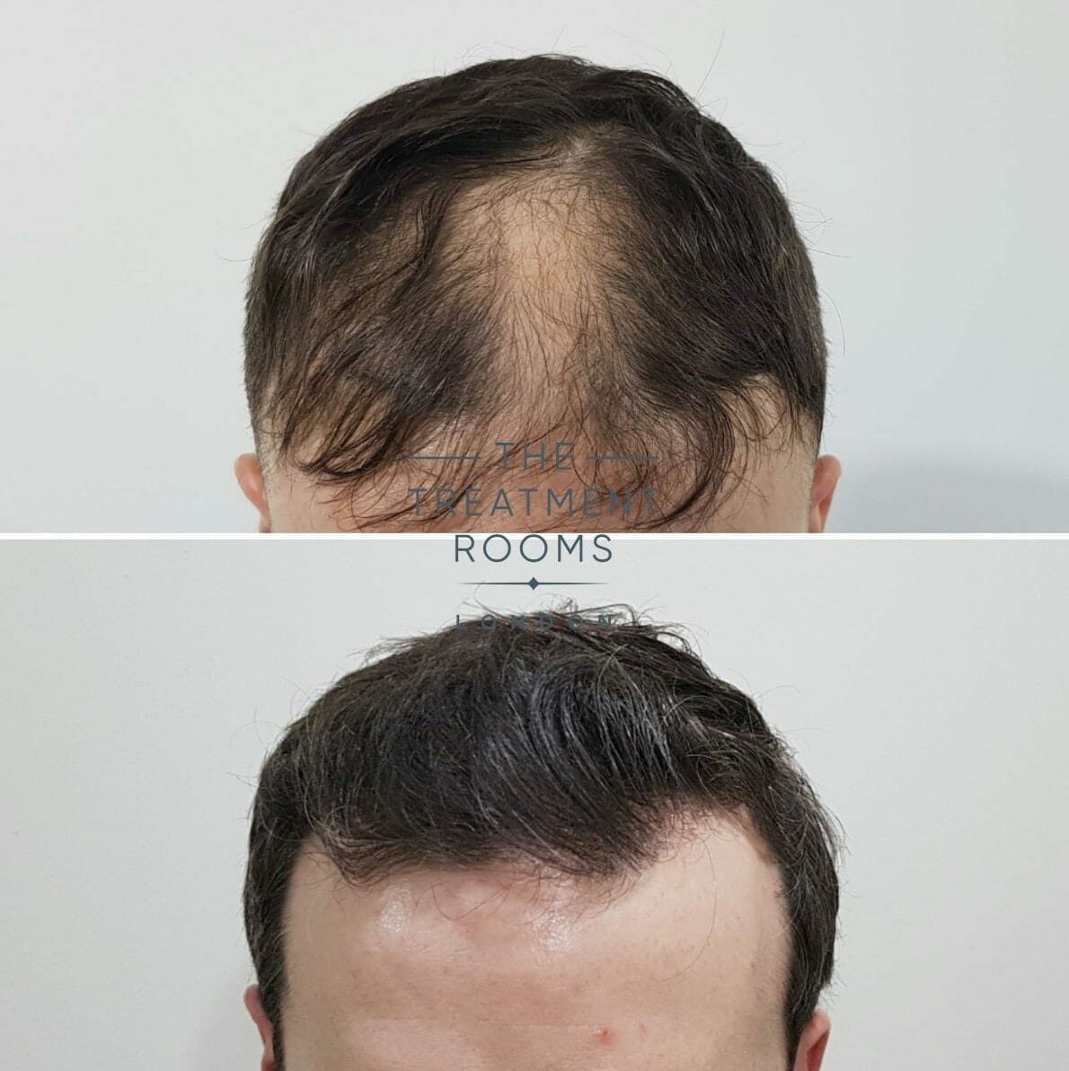 FUE-Hair-transplant-results-after-10-months