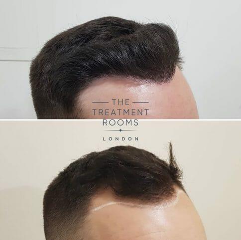FUE Hair transplant scars