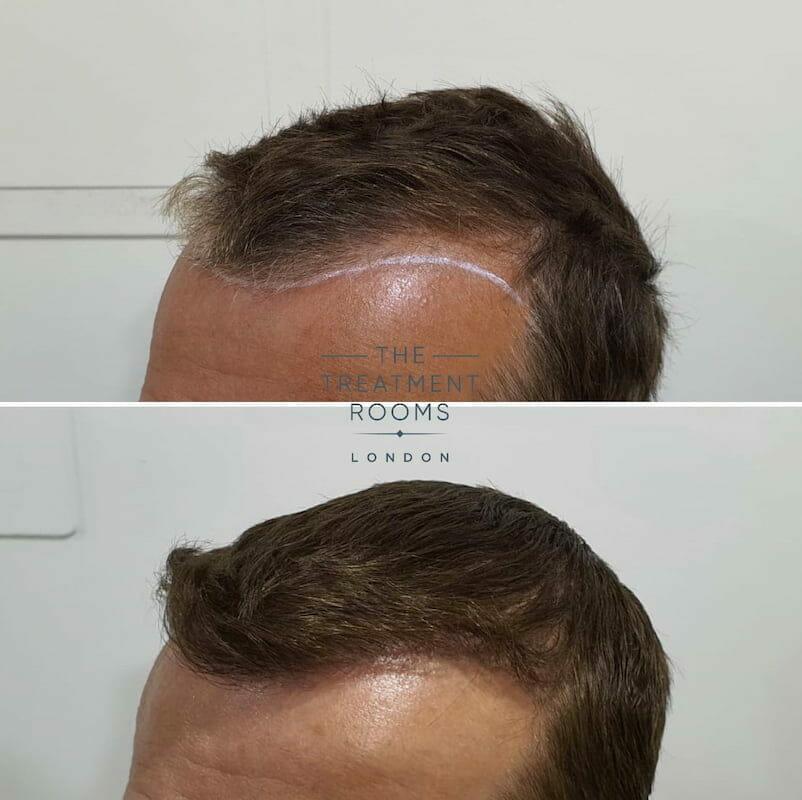 FUE hair transplant hairline 1452 grafts