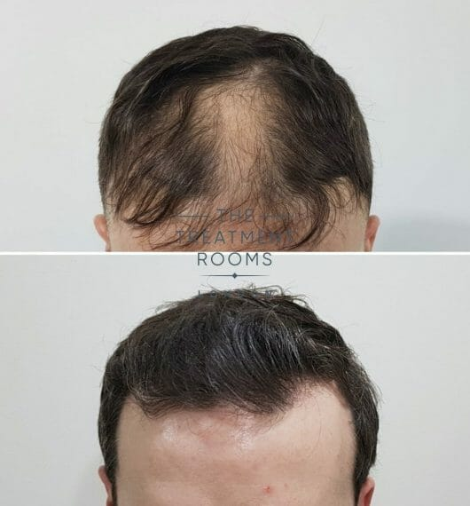 FUE hair transplant pain