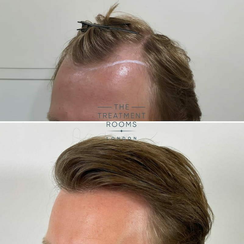 FUE hair transplant result left hairline