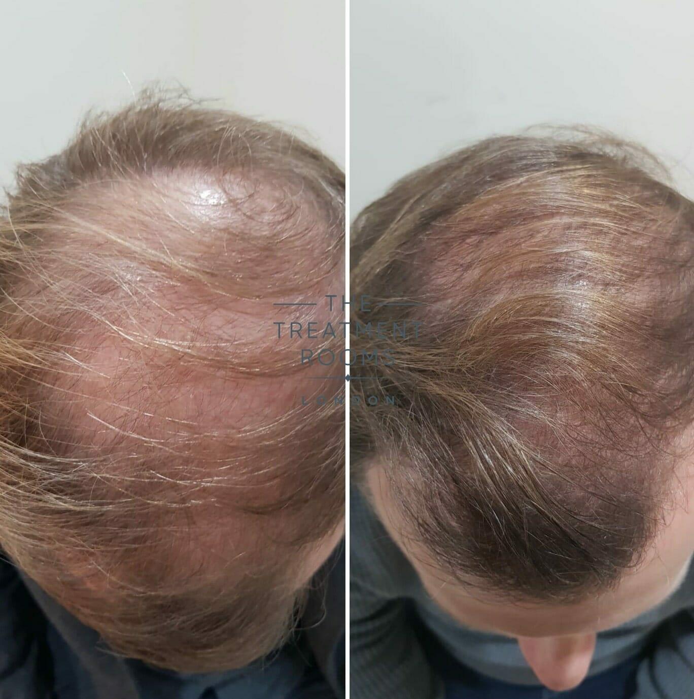 FUE-hair-transplant-result-london