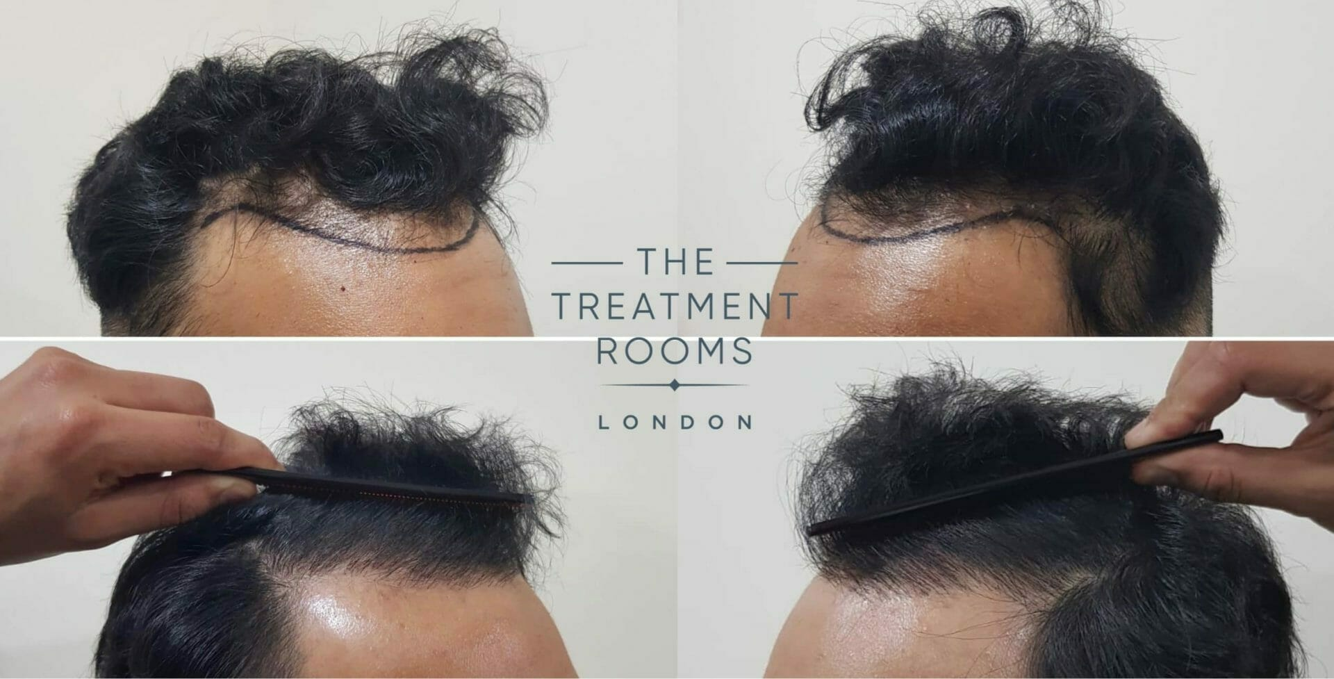 Front and Temporal Hairline Hair Transplant