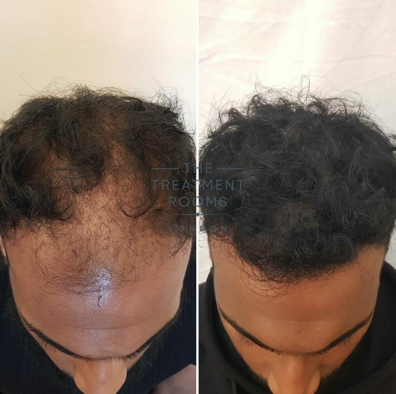 Front-hair-transplant-london