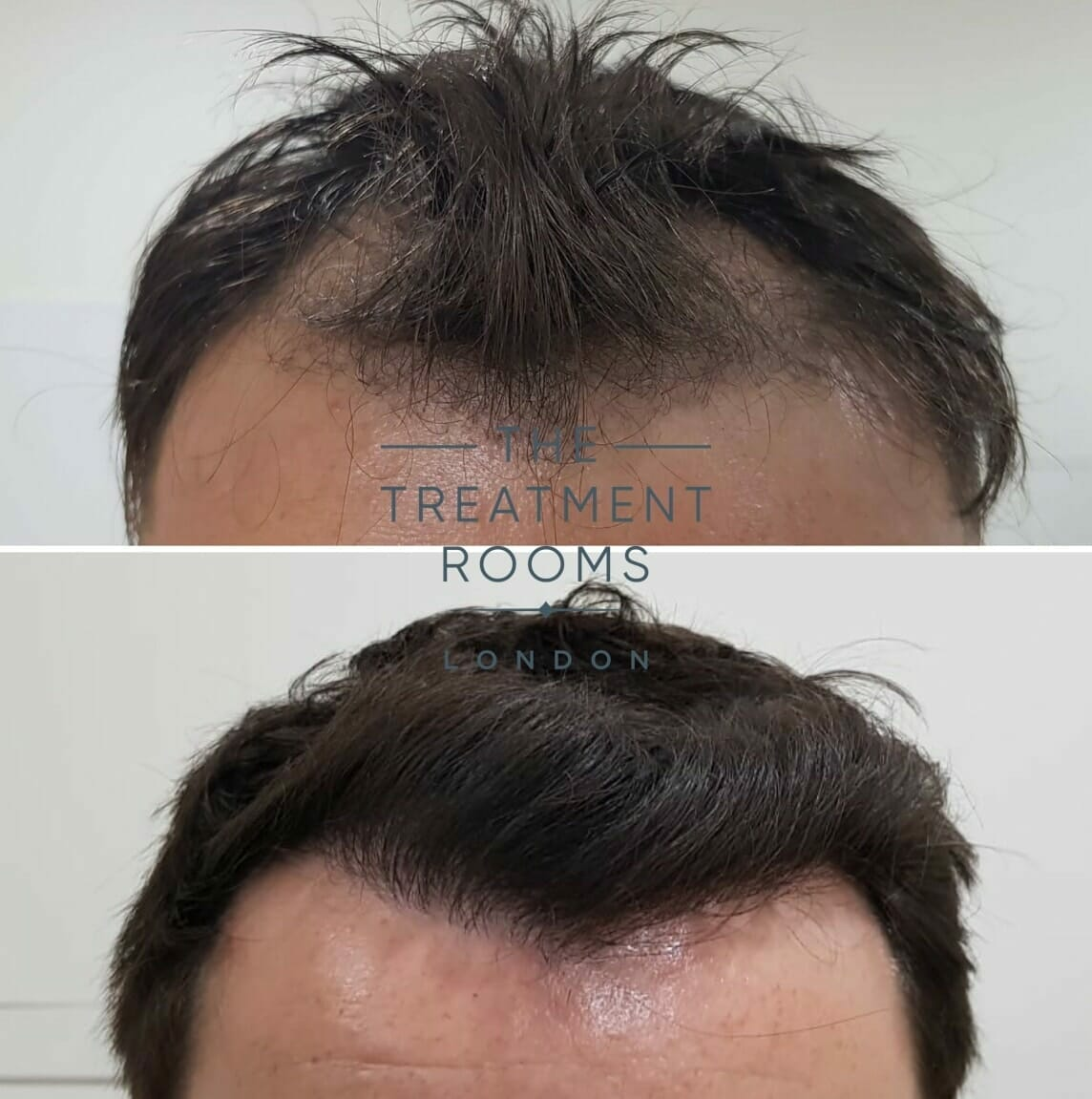 frontal hairline hair transplant london