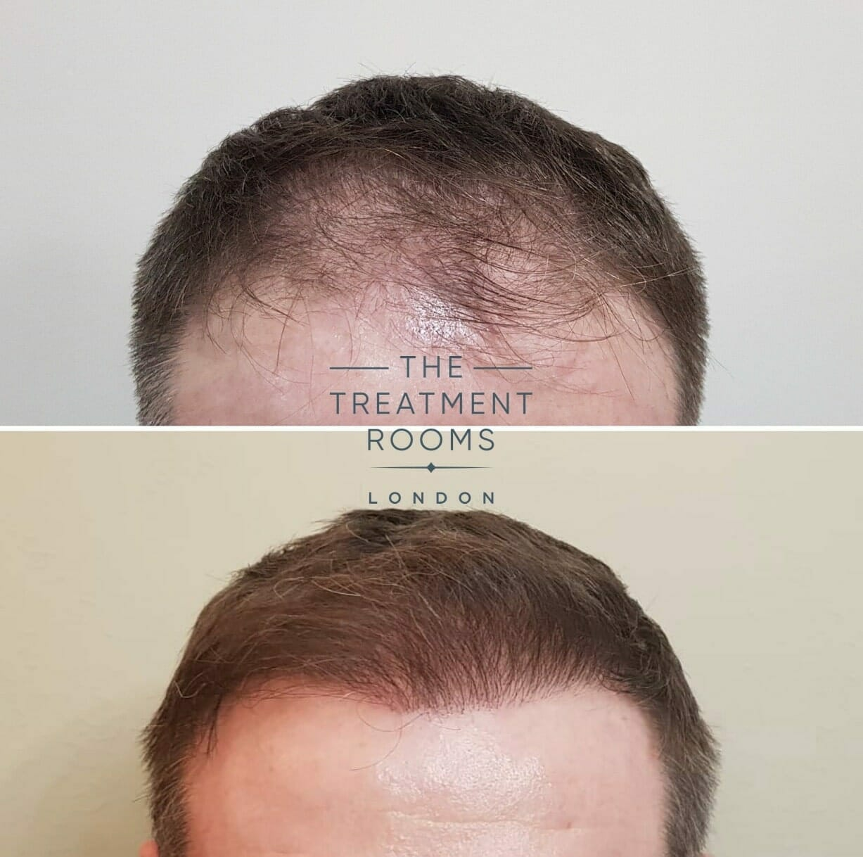 Frontal-hairline-FUE-hair-transplant-london-before-and-after