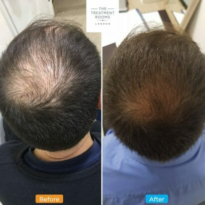 Hair thinning crown male pattern baldness