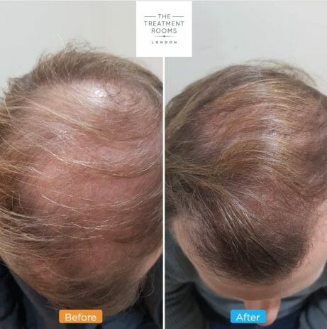 FUE hair transplant crown before and after