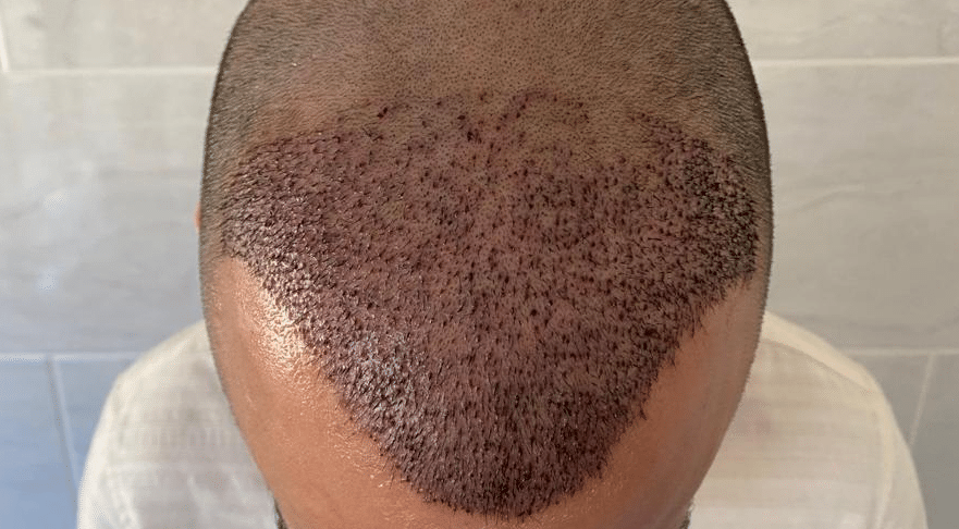 How long does it take for the grafts to become secure?
