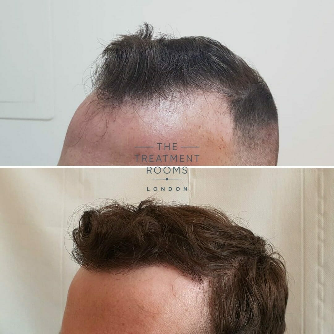 Left Temporal Hairline Hair Transplant London Before and After