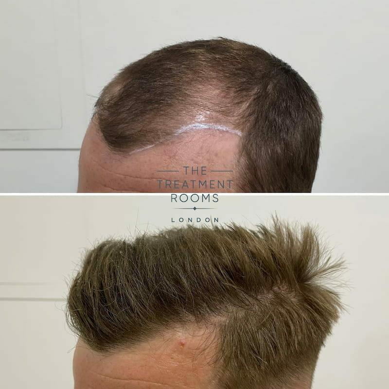 Left hairline FUE hair transplant result