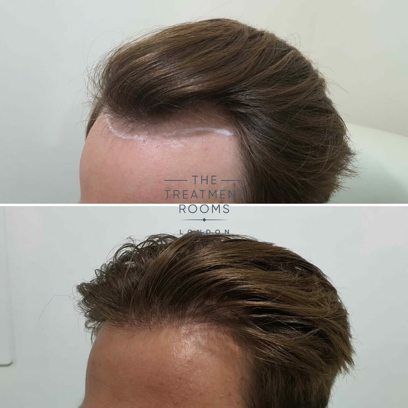 Receded Hairline FUE Hair Transplant Before and after (1)