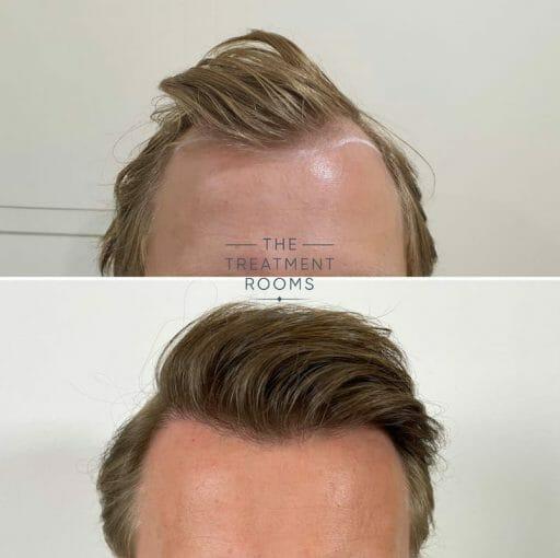 Receding hairline FUE hair transplant