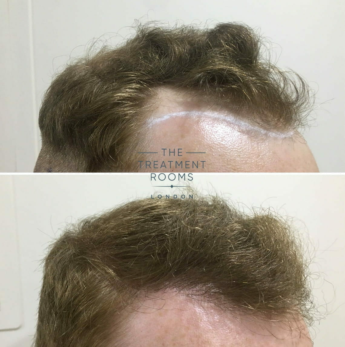 right temple with hairline hair transplant