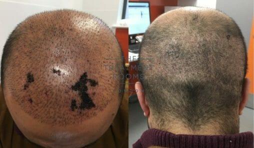 skin necrosis after hair transplant