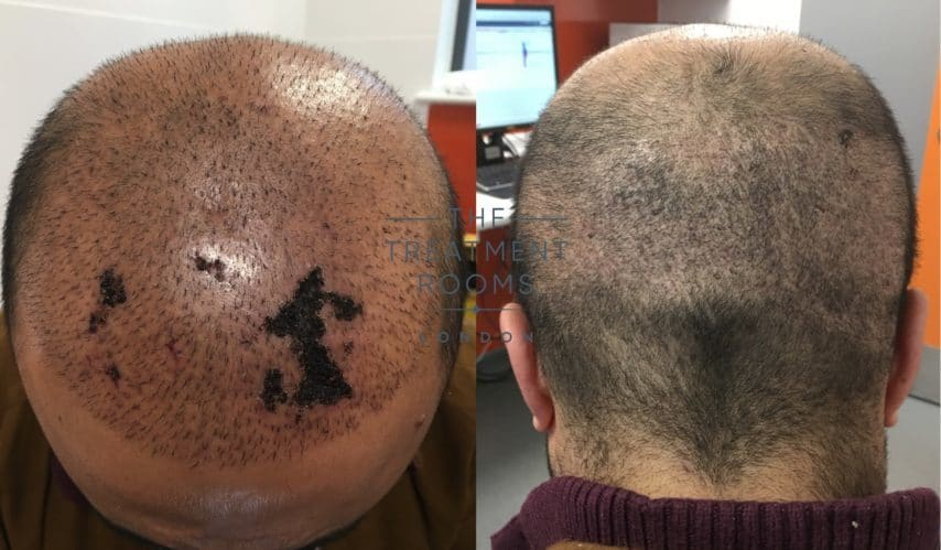 skin necrosis and scars after hair transplant