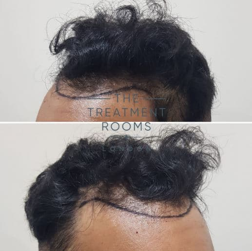 Frontal FUE hair transplant London
