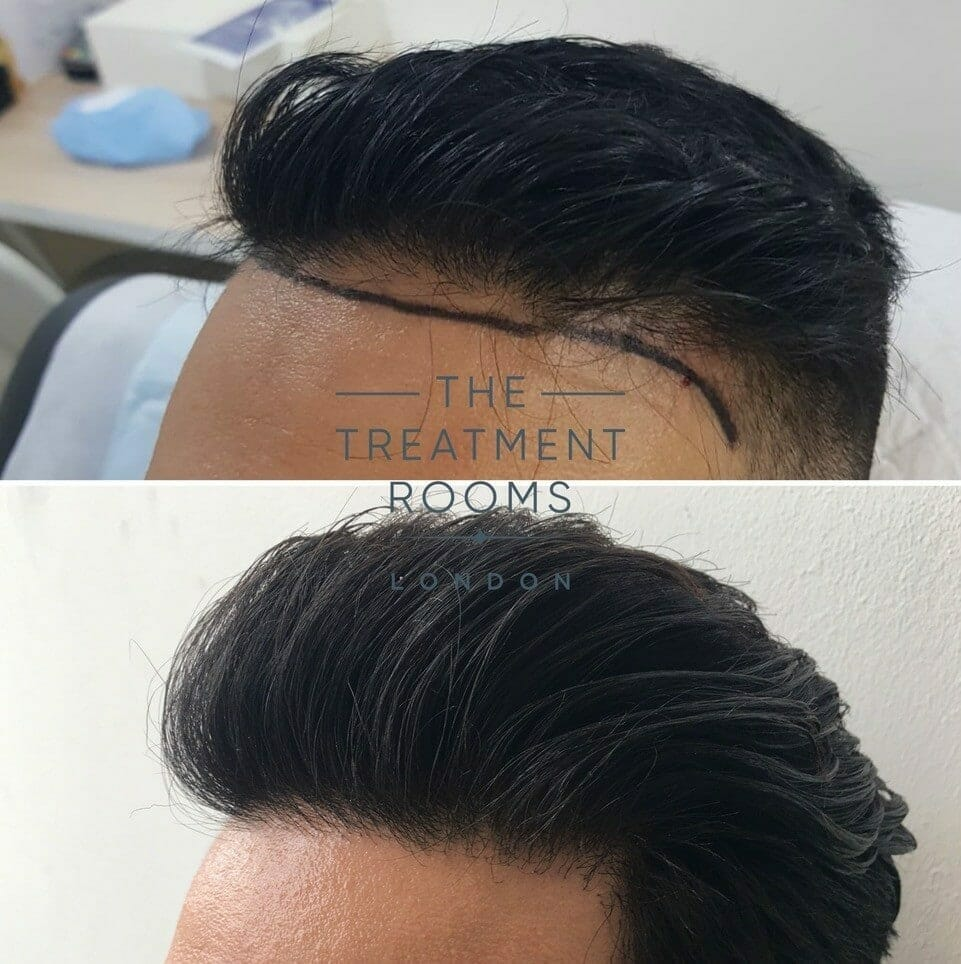 left temple and hairline hair transplant