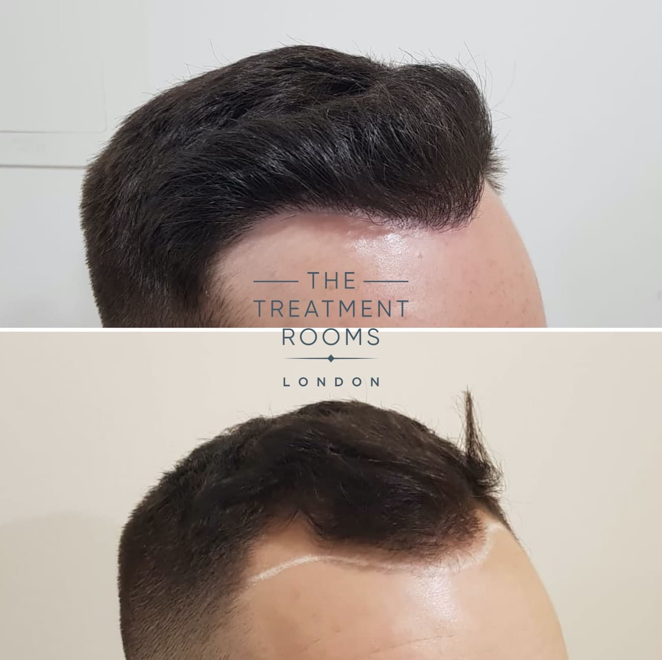 hairline FUE hair transplant before and after