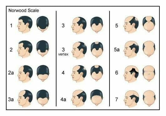 Norwood Scale, Male Hair Loss